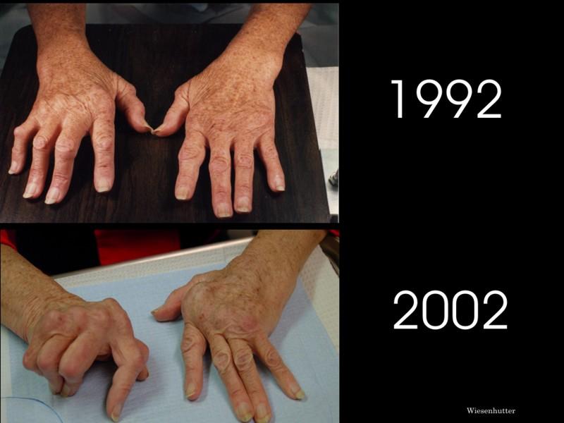 anti arthritis thesis