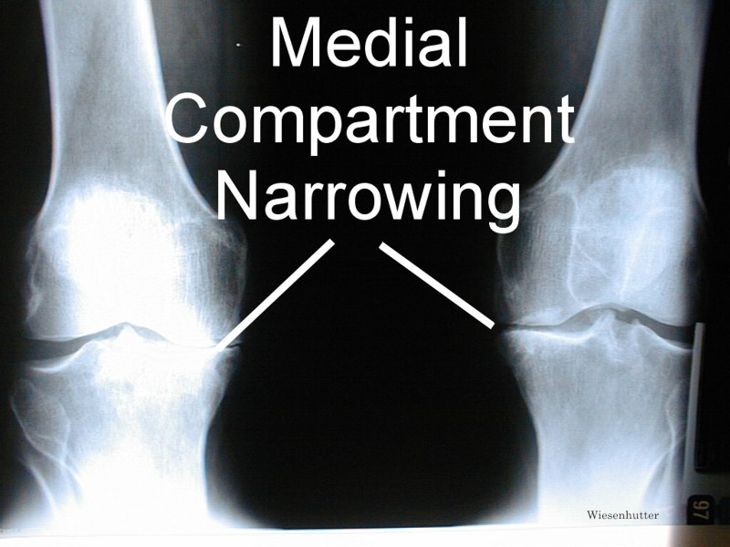 thirteen Natural Osteoarthritis Treatments