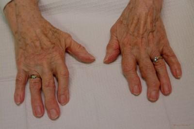 Osteoarthritis Clinical Manifestations, Bouchard's Nodes: Slides ...